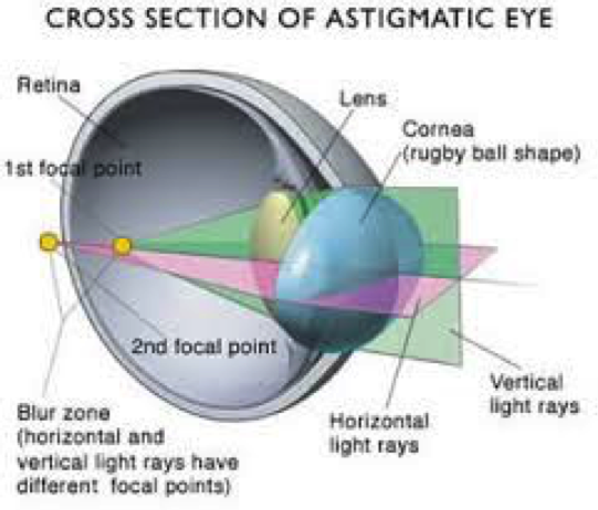 7534f10994 4.2.6crosssection.png. Astigmatism is a very ...