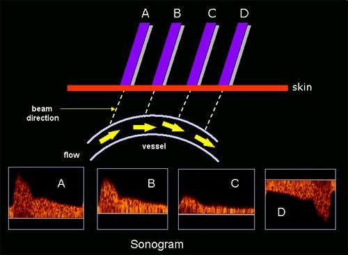 Doppler Sonography  Physical Principle